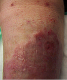 venous leg ulcer after